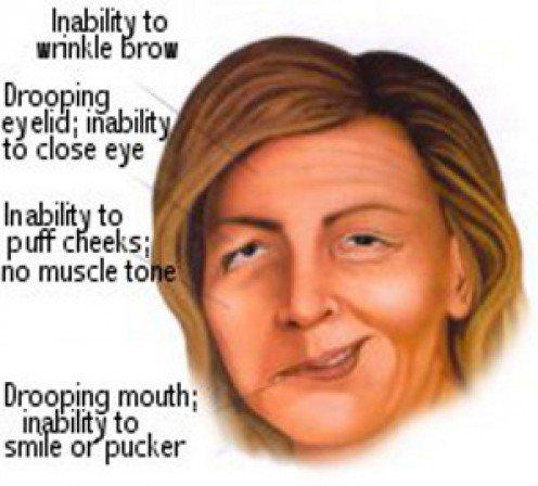 symptom bells palsy