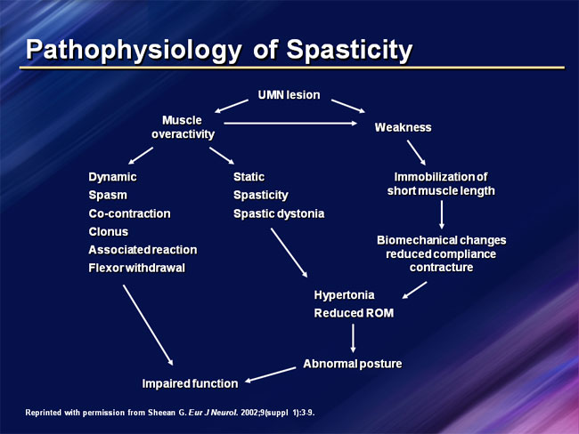 Spasticity of Muscles : Grades, Treatment, Exercise