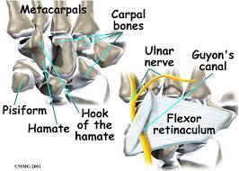 Ulnar Nerve Palsy Injury Compression Mobile
