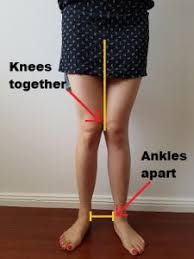 knee valgus deformity