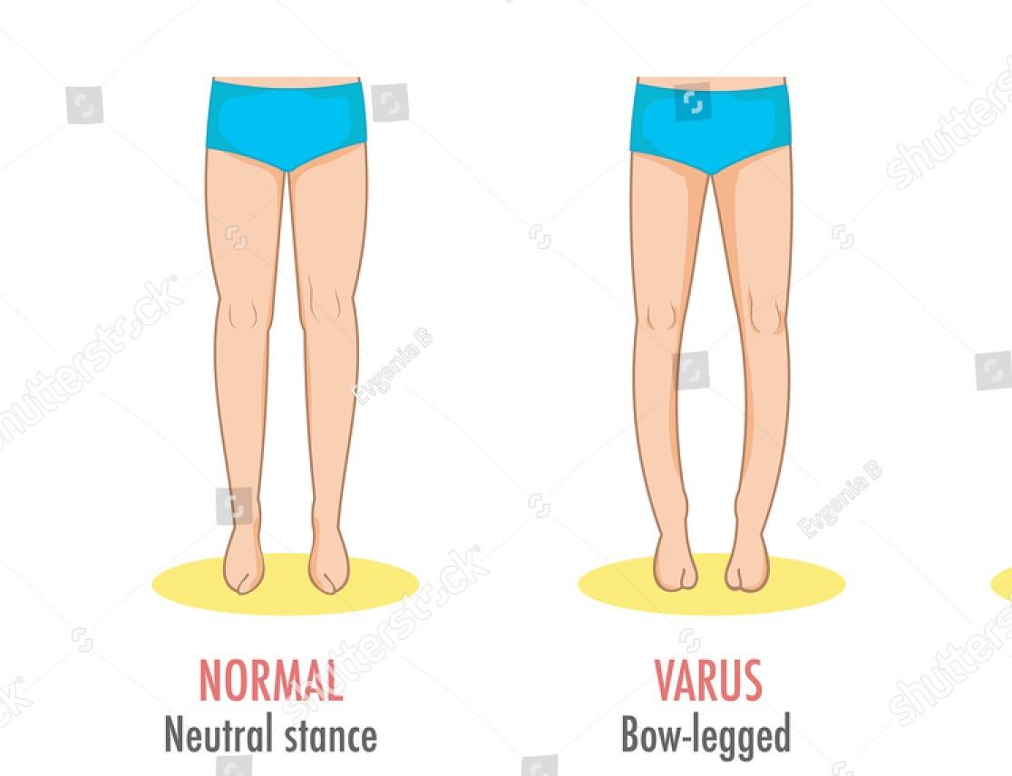 Knee Varus Deformity