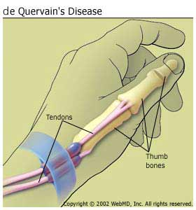 de_Quervains disease
