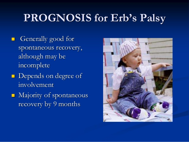Erbs palsy exercises
