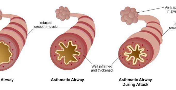 asthma_AIRWAY