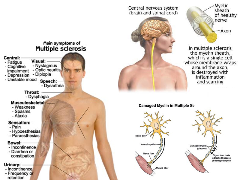 Multiple sclerosis painful sex