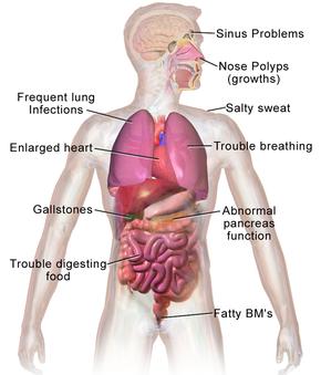 SYMPTOMS IN CF