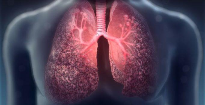 cystic-fibrosis-