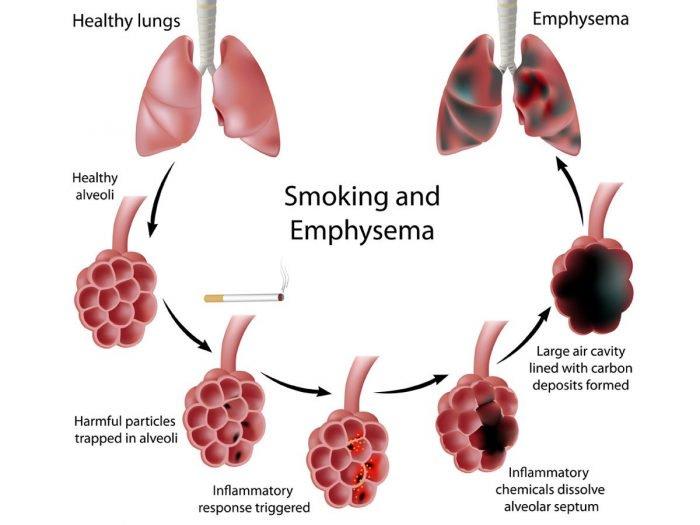 emphysema (1)