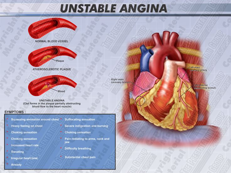 unstable angina