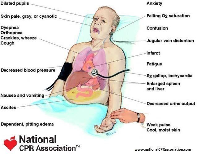 symptoms of chd
