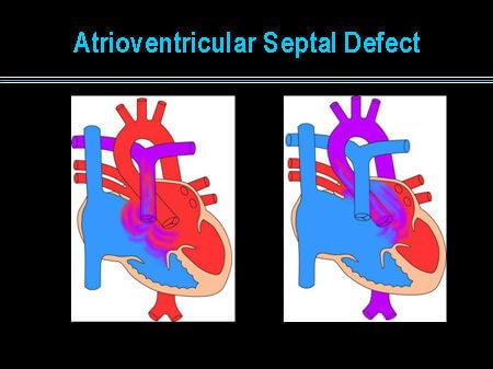 Atrioventricular-Septal-Defect-Picture