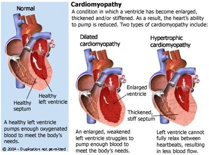 TYPES CARDIOMYOPATHY