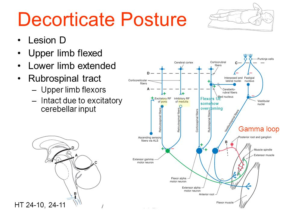 Decorticate Posture , Mobile Physiotherapy Clinic Ahmedabad