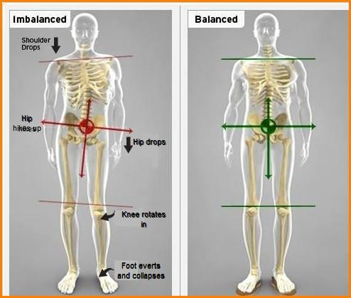 pelvic tilt : causes , types , diagnosis & physiotherapy treatment